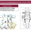Facettendenervation nach Ray