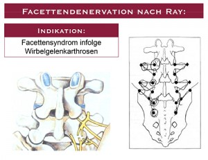 Facettendenervation-nach-Ray-1-300x231