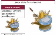 Intradiskale Elektrotherapie (IDET)